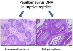 papilloma virus squamous cell