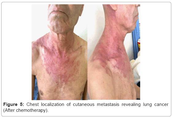 Urmărirea Pacienţilor Cu Carcinom Bazocelular Metastatic Cancer And Skin