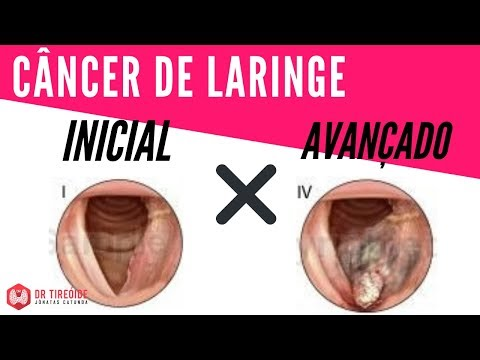 cancer na faringe quais os sintomas