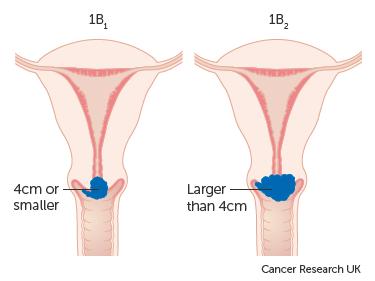 cancer en cervical