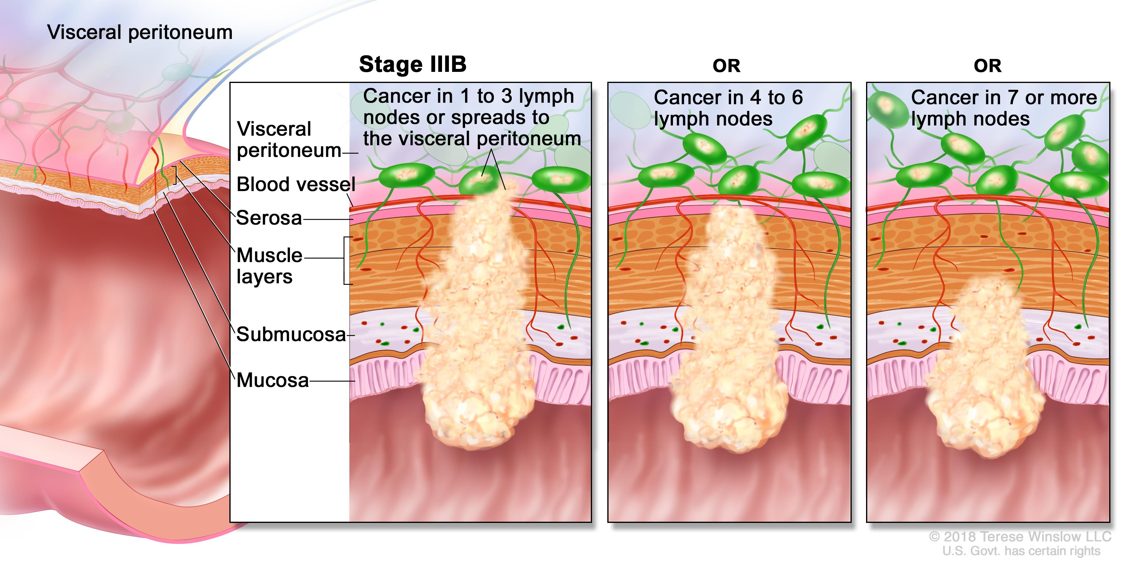 cancer colon stage 4