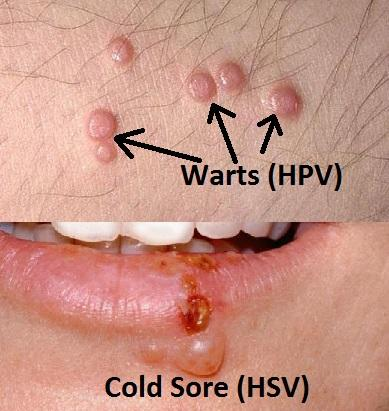 Colectare hpv