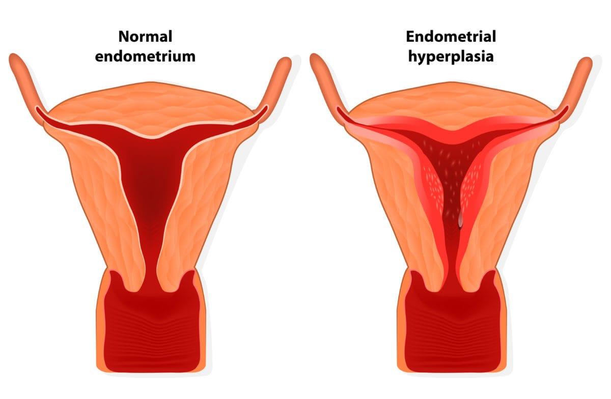 cancer endometrial definicion