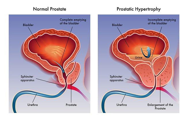 papillary thyroid cancer orphan annie eyes virus del papiloma y preservativo