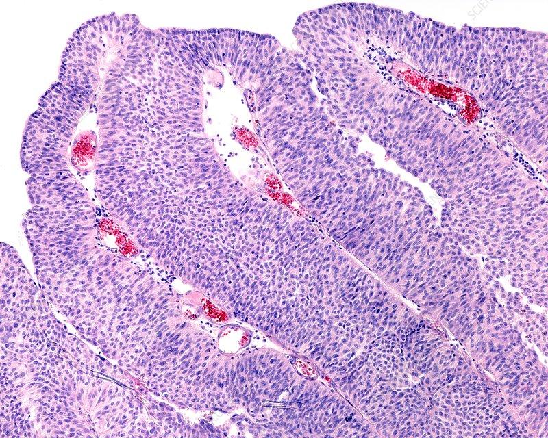 papilloma of urinary bladder