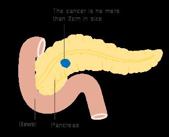 cancer cap pancreas simptome vaccino papilloma virus infezione