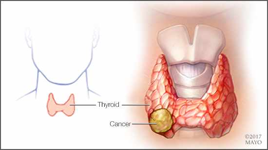 que es papillary thyroid cancer