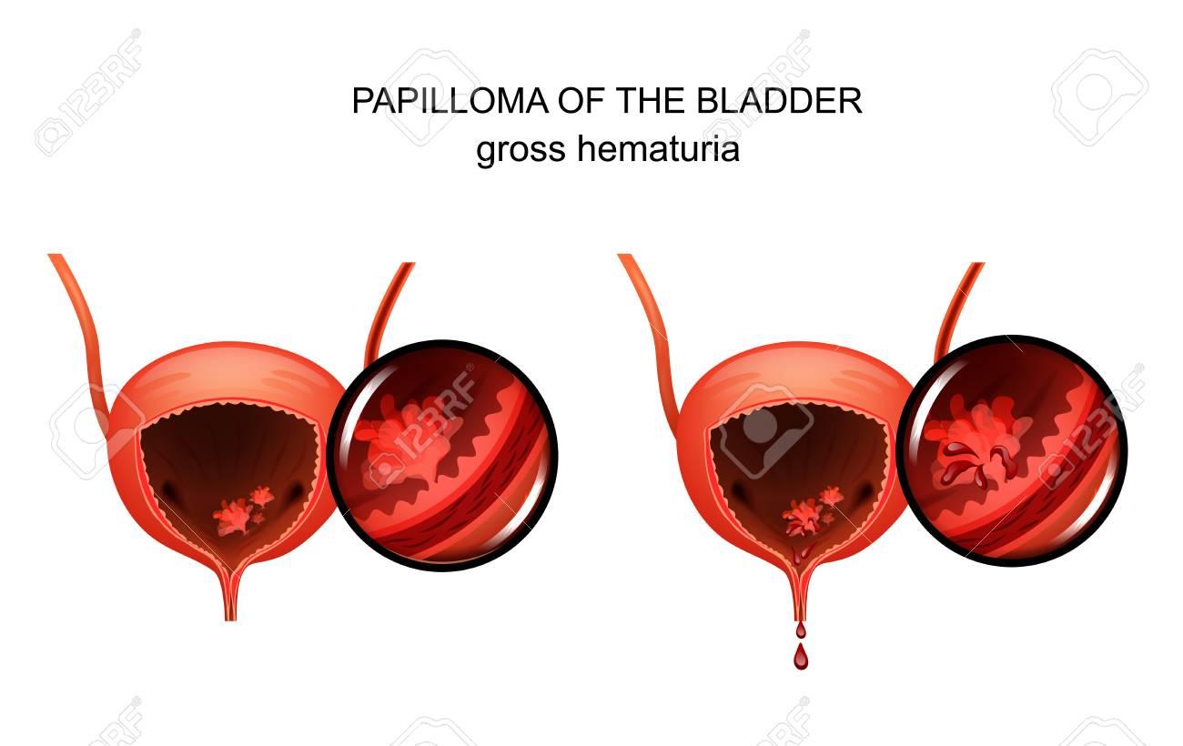 papillomavirus est ce une mst