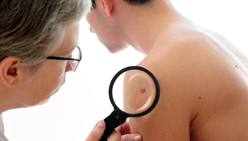 Investigaţia care creşte şansele de vindecare în cancerul de piele: biopsia