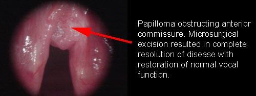 laryngeal papilloma cure