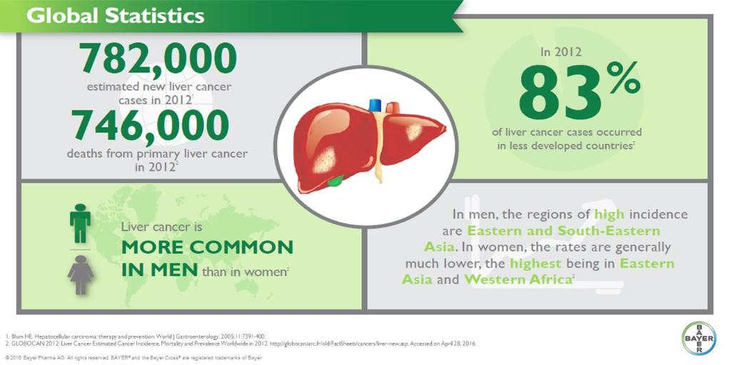hepatocellular cancer most common