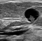 intraductal papilloma rad