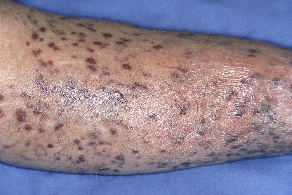 Sarcom Kaposi la un pacient HIV-negativ