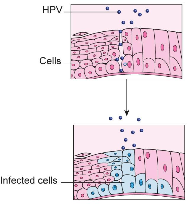 human papillomavirus infection for cervical cancer hpv papilloma virus cose
