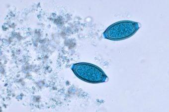 verme oxiurus gravidez verrugas hpv caracteristicas