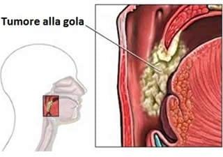 papilloma virus alla laringe