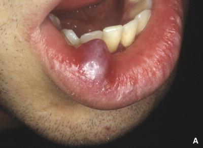 familial cancer syndrome slideshare papiloma humano en genitales