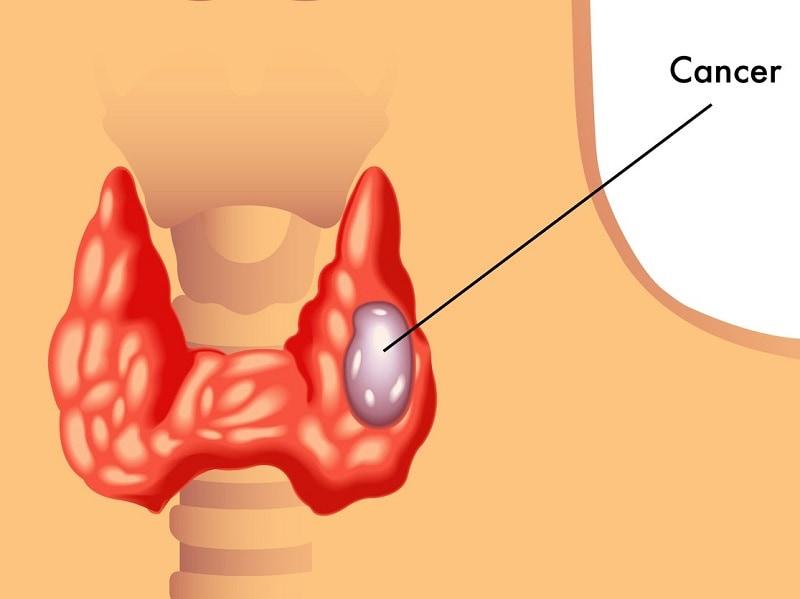 hpv and thyroid cancer cancer de piele regim alimentar