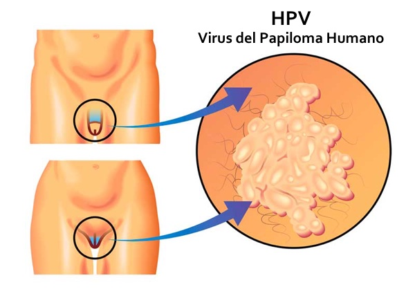 papiloma humano cancer de pene