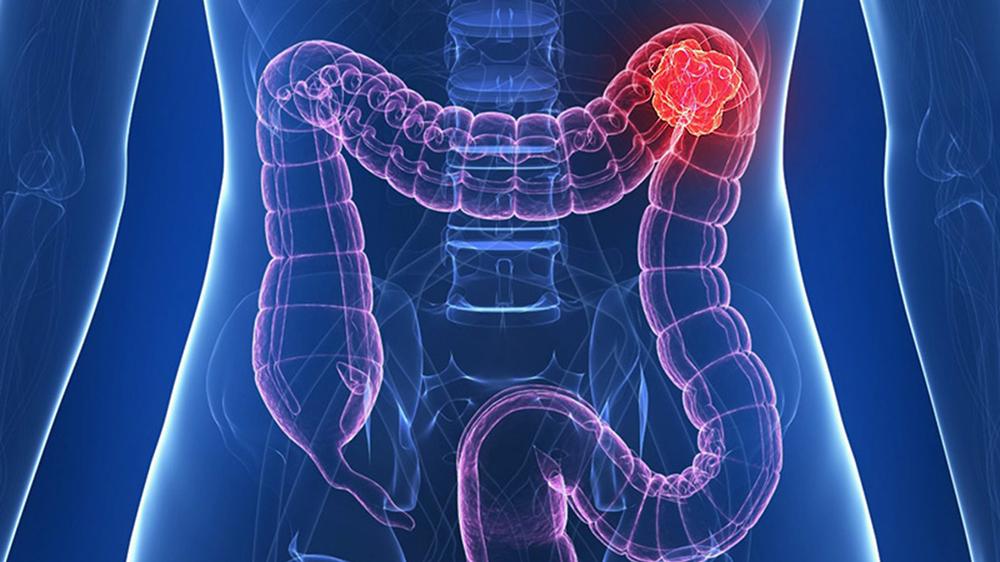 cancer tratament colon papillomavirus infection rate