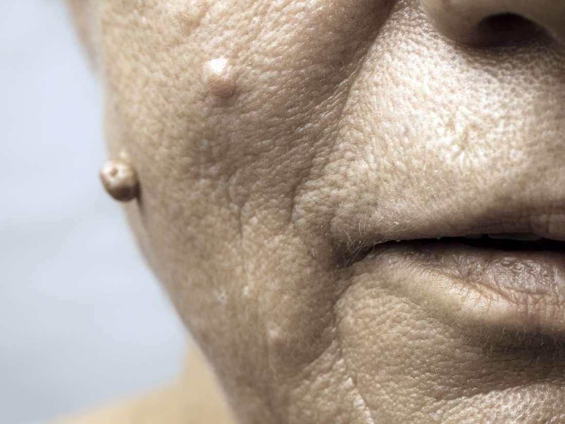 vph en boca sintomas papillomavirus douleurs