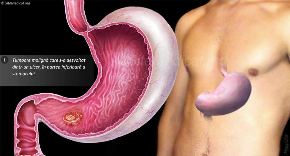 cancerul gastric manifestari cancer caused by hpv virus