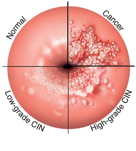 human papillomavirus simptomi viermele cu carlig