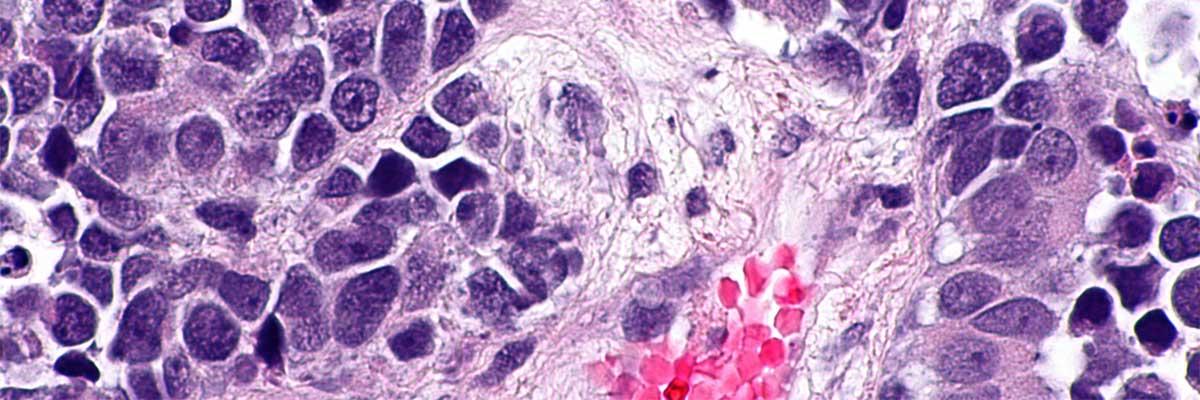 simptome cancer vezica urinara femei