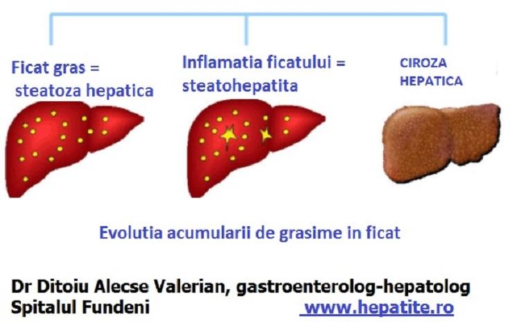 cancer hepatic si ciroza cancer de prostata urinar sangue