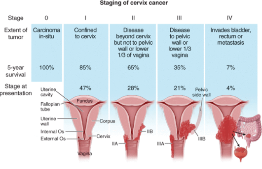 cancer endometrial stage 3 what does a nasal papilloma look like