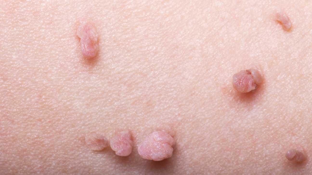 respiratory papilloma icd 10 que es papillary thyroid cancer