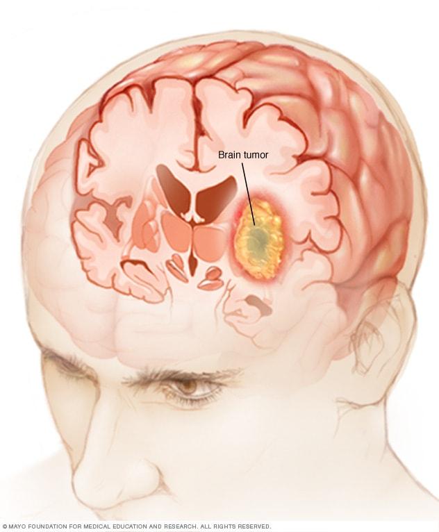 cancer cerebral sintomas y causas