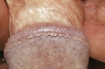 papilloma linguale cure hpv as? tedavisi