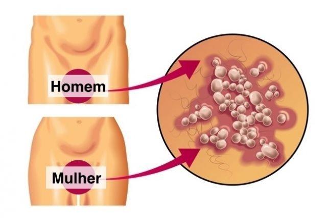 virus del papiloma herpes genital
