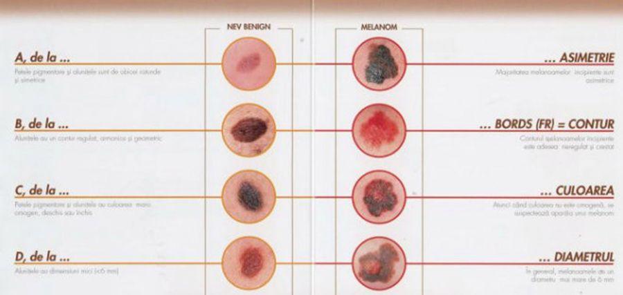 ce viermi pot fi copiii hpv anale sintomi