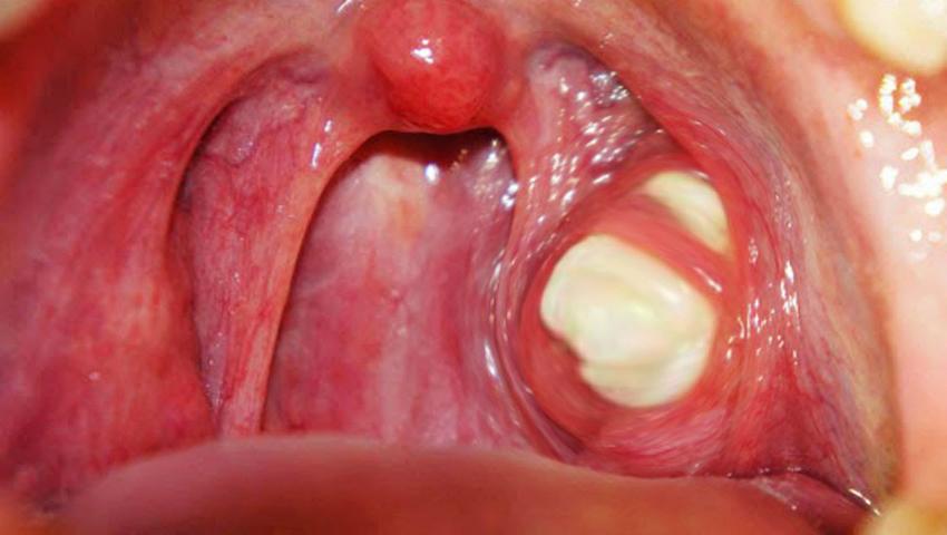 virusi worm virus papilloma umano come si contrae