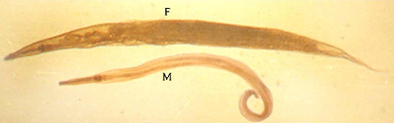 enterobius vermicularis male metastatic cancer meaning