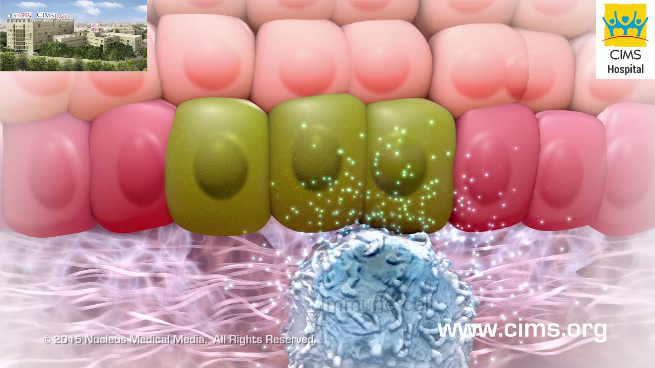 Remove Skin Tags & Warts – (Android Aplicații) — AppAgg