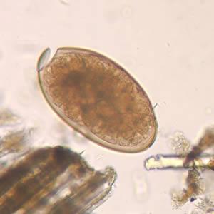 paraziti znaki gastric cancer immunohistochemistry profile