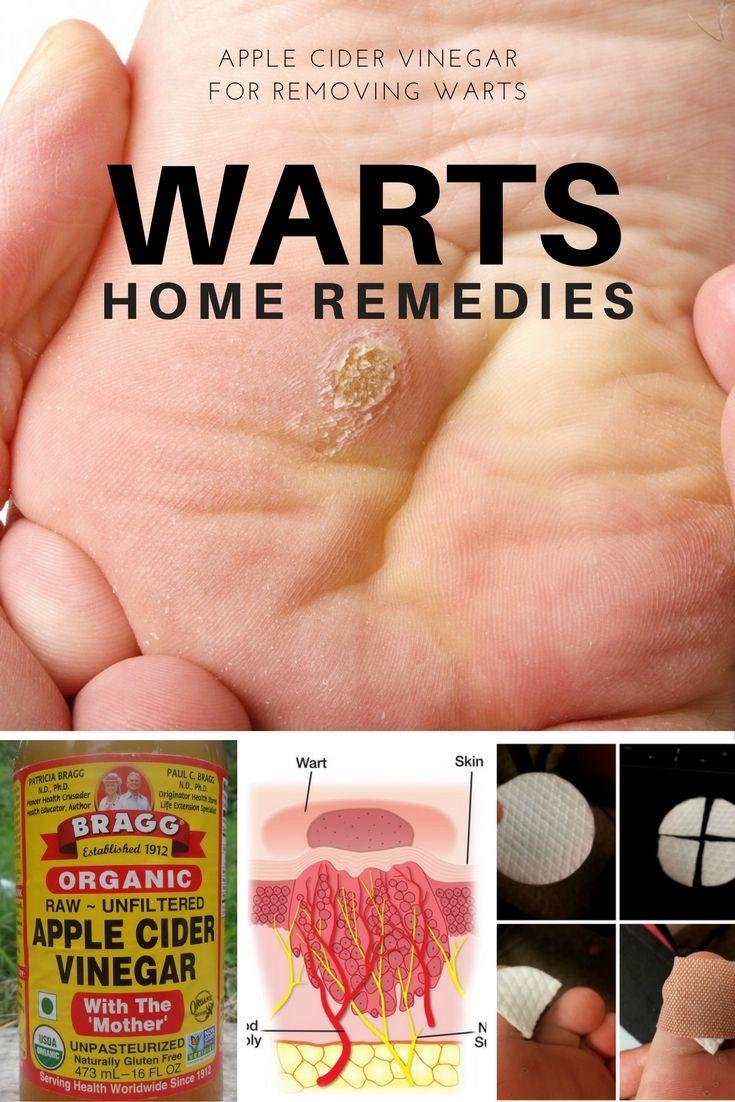 wart on foot apple cider vinegar