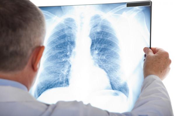 cancer pulmonar dupa operatie viermele cu carlig