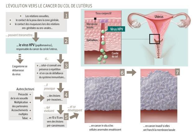 papillomavirus ablation de luterus