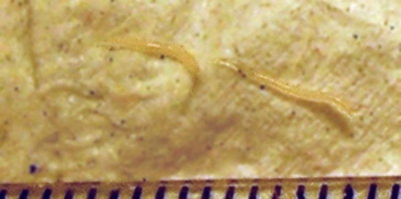 parazitii vinyl cancer colon guerison