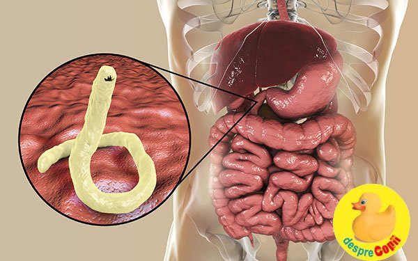 paraziți de tip în stomacul uman
