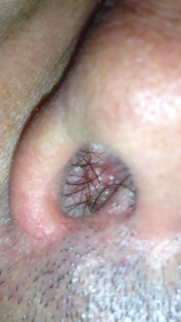 intervento papilloma nasale hpv tumore ovaie