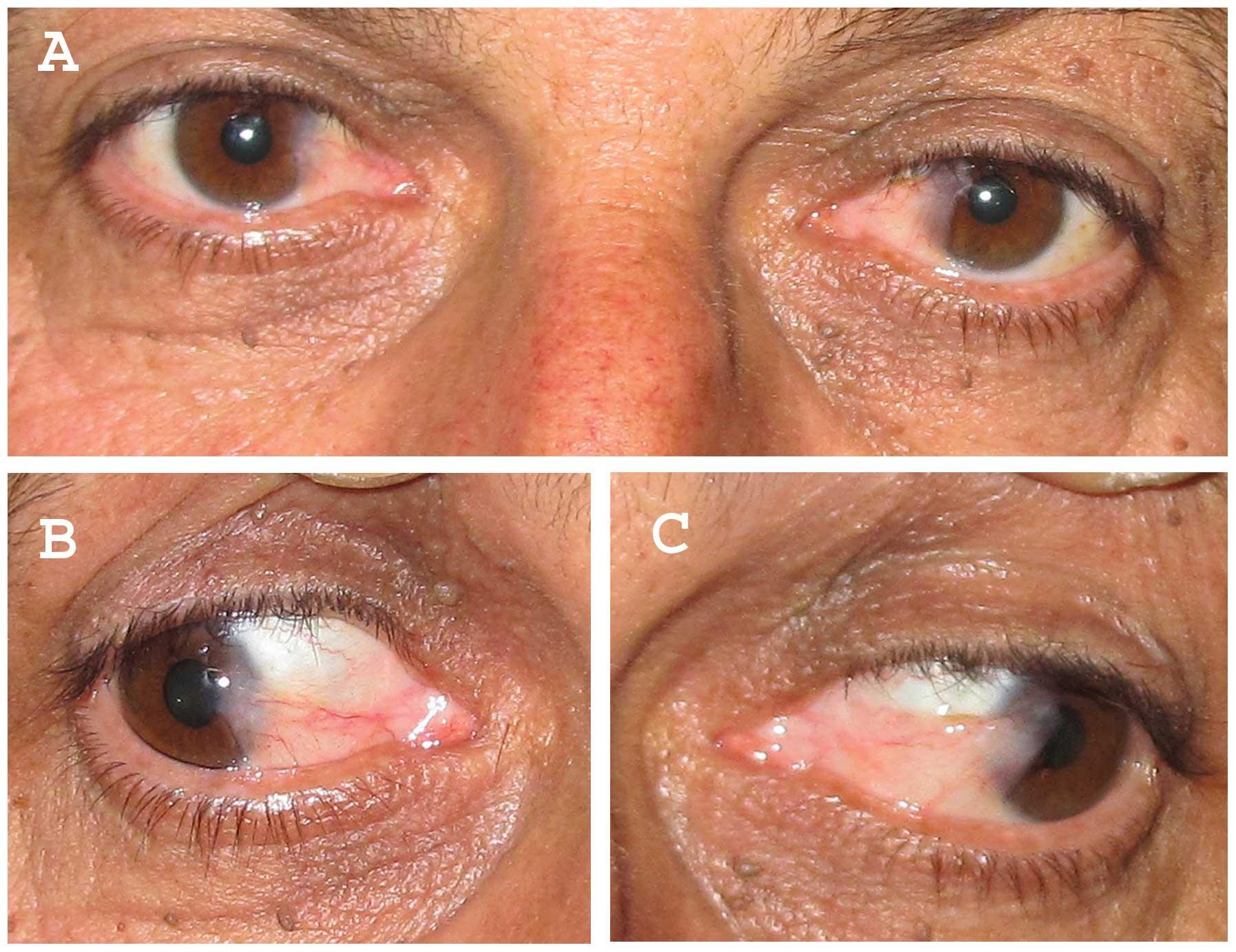 hpv eye symptoms