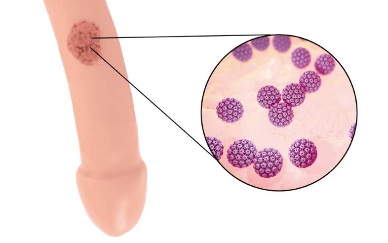 cancer cervical guidelines does high risk hpv cause cancer