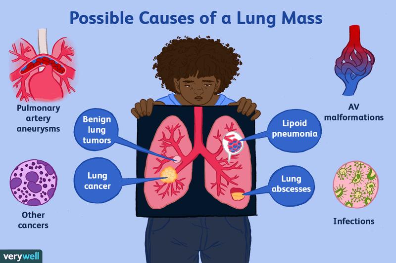 cancer pulmonar avansat