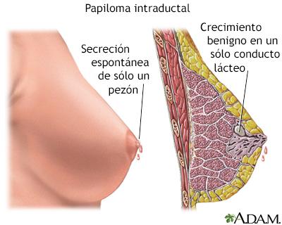 papiloma seno causas