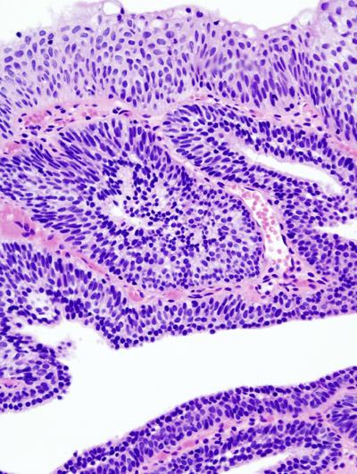 inverted papilloma urinary bladder histology